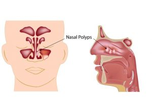 what-are-nasal-polyps
